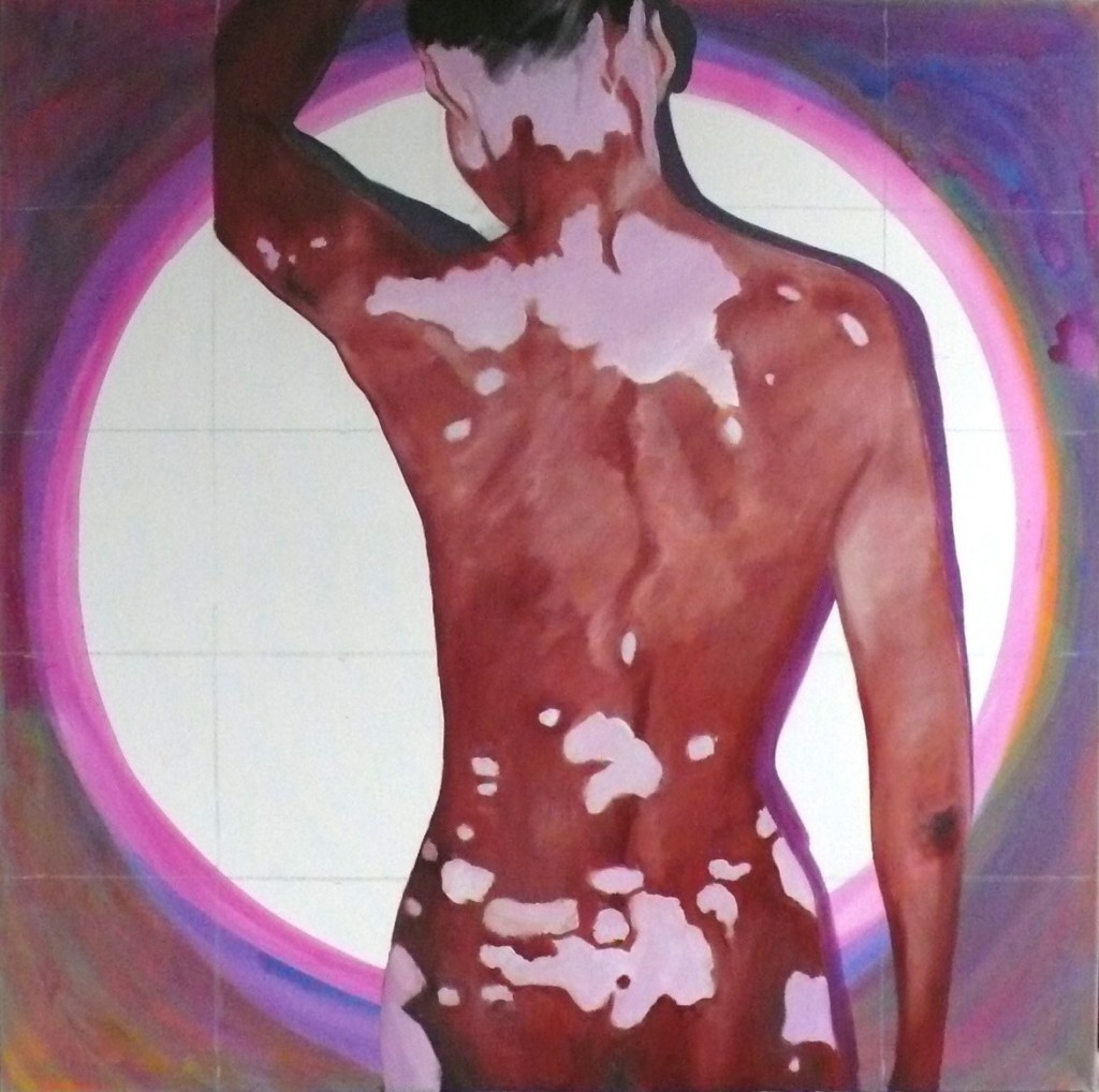 Vitiligo, 2010, oil on canvas, 95x95cm